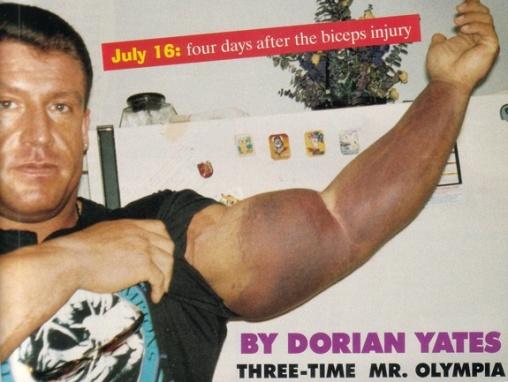 Yates injury